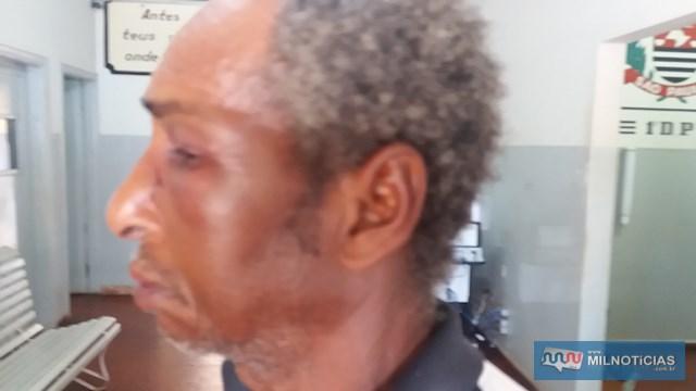 Aposentado ficou com o rosto bastante inchado devido as agressões. Foto: MANOEL MESSIAS/Agência