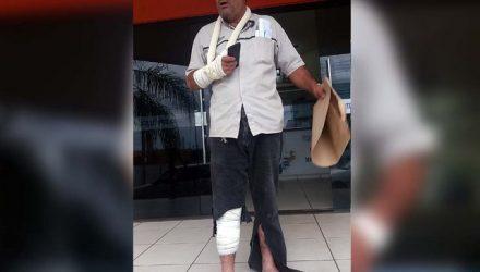 Frentista sofreu corte profundo na perna e luxação da mão, ambos do lado direito, sendo medicado e liberado em seguida. Foto: MANOEL MESSIAS/Agência