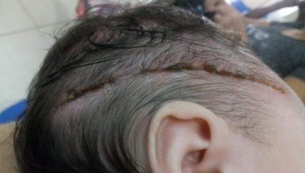 Bebê levou 25 pontos na cabeça após corte causado por bisturi durante parte em Araçatuba (SP) — Foto: Arquivo pessoal