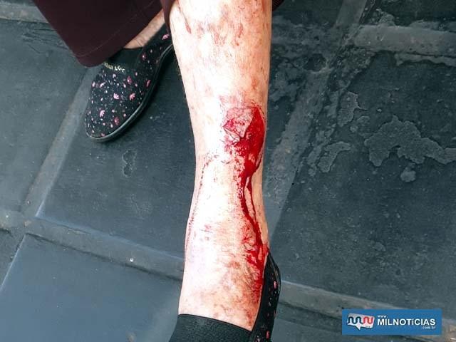 A idosa sofreu um corte e contusão na canela da perna esquerda e escoriações no queixo. Foto: MANOEL MESSIAS/Agência