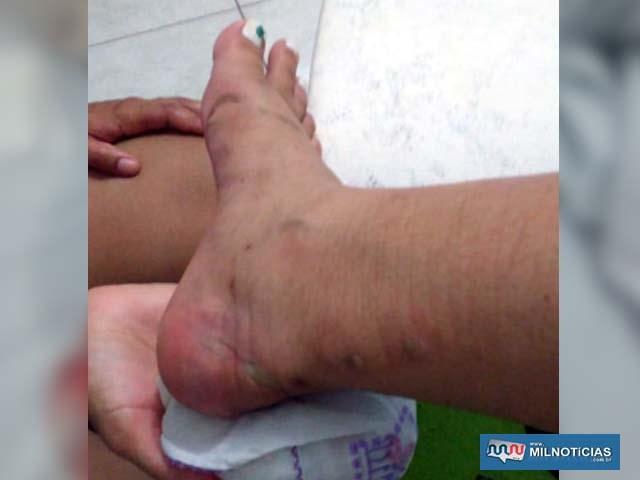 Namorada dele e passageira da moto teve o pé direito preso na roda traseira.  Foto: Arquivo familiar