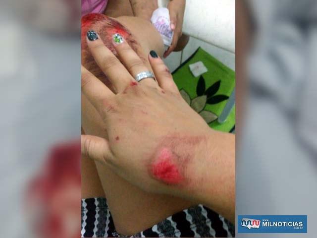 Moça também sofreu escoriações por todo o corpo, incluindo joelho e mãos. Foto: Arquivo familiar