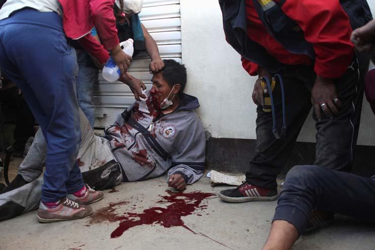 Manifestante ferido em operação da polícia e exército para acabar com um ato em uma refinaria na cidade de El Alto, na Bolívia, em 19 de novembro de 2019 — Foto: Pablo Aneli/Reuters.