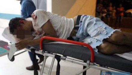 """Walison Andrade de Oliveira, o """"Bebê"""", 18 Anos, sofreu traumatismo craniano. Foto: MANOEL MESSIAS/Mil Noticias"""