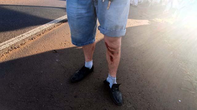 Com o tombamento, o motorista sofreu apenas escoriações na perna esquerda, safando-se do acidente consciente e orientado.Foto: Fábio Campos/Rádio Caçula.